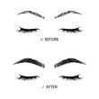 Brow correction before and after illustration