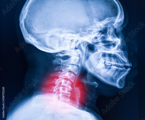 Fotografía  x-ray image of cervical spine, neck x-ray image