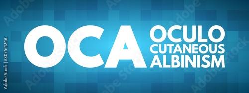 Fotografia, Obraz  OCA - Oculo Cutaneous Albinism acronym, concept background