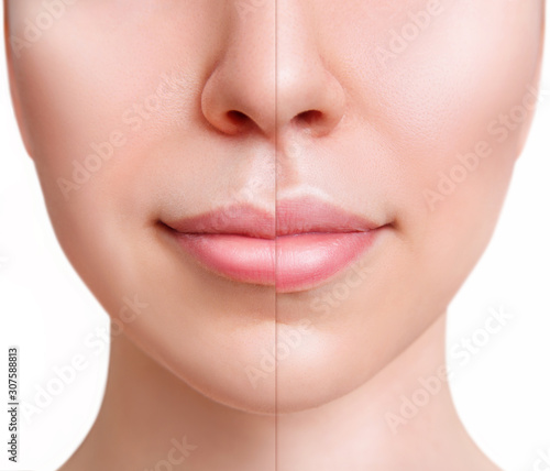 Sensual female lips before anf after augmentation procedure. Fototapeta