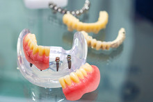 Prosthesis On Mini Implants. M...