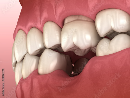 Teeth shift deformatiuon after losing molar tooth Wallpaper Mural