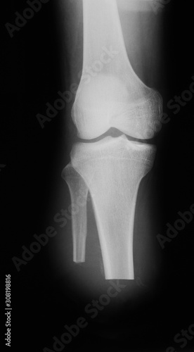 Photo X-ray image of amputated lower leg, anteroposterior veiw (AP)