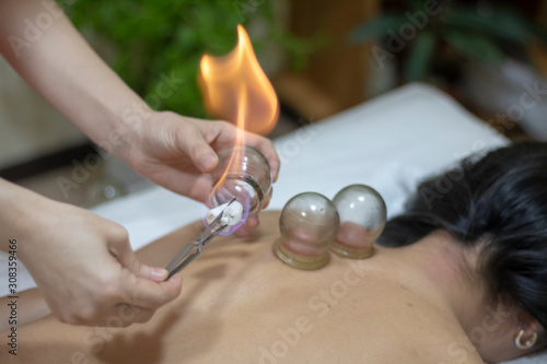 Acupuncture therapist setting a fire cupping glass on the back of a young woman Canvas Print