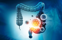 Colon Cancer, Bacterias, Virus...