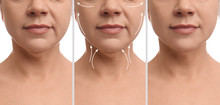 Mature Woman Before And After Plastic Surgery Operation On White Background, Closeup. Double Chin Problem
