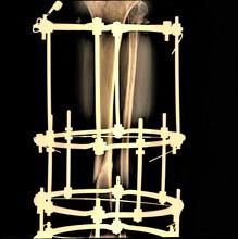 N The X-ray Machine Ilizarov W...