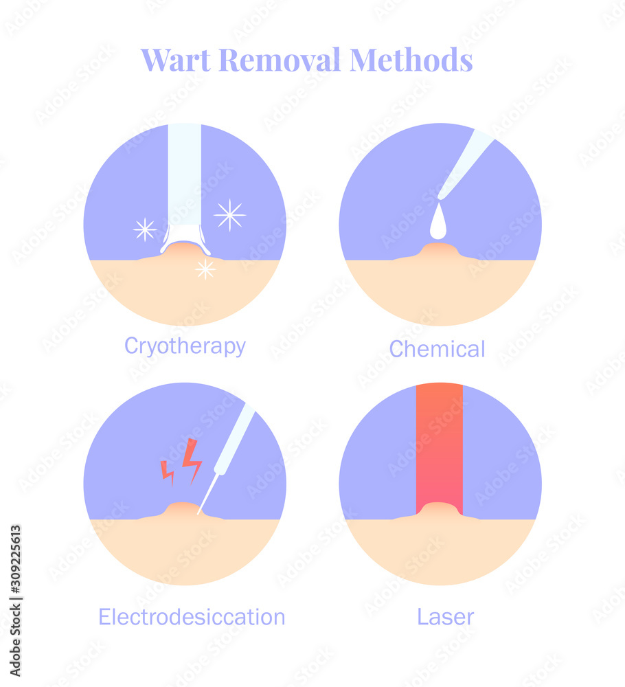 Fototapeta Infographics wart removal methods. Cryotherapy, Electrodesiccation, chemical and laser removal.