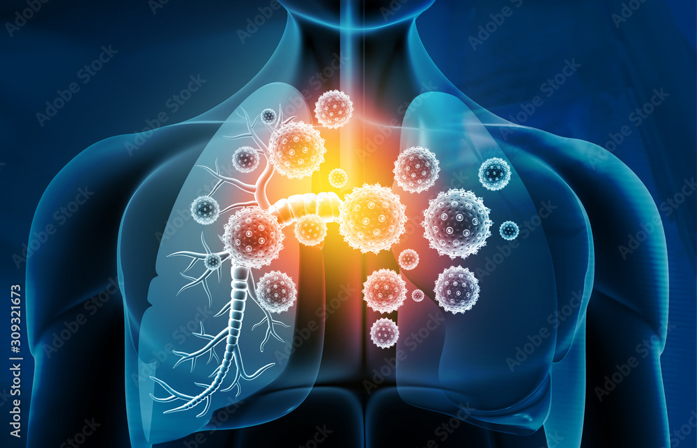 Fototapeta Viral lung infections, lung infection conept. 3d illustration.
