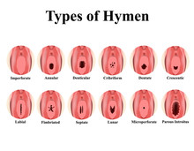Types Of Hymen. Imperforate, Annular, Denticular, Cribriform, Dentate, Crescentic, Labial, Fimbriated, Septate, Lunar, Microperforate. Hymen After Defloration. Infographics. Vector Illustration.