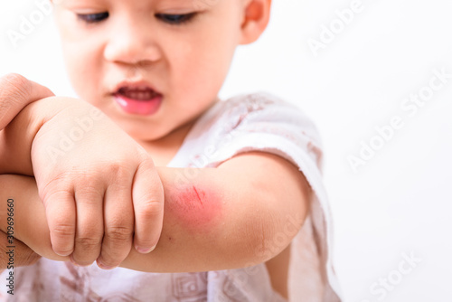 Asian boy kid show arm accident wound he painful abrasion scratches from fall Canvas Print