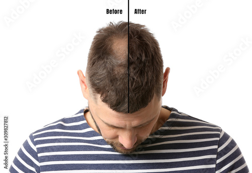 Man before and after hair loss treatment on white background Canvas Print