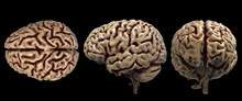 Brain Anatomy Of The Human Body In Three Views Isolated In White Background - 3d Rendering