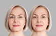canvas print picture - Woman middle age face before and after collagen face injection. Wrinkle anti aging concept. Beauty cosmetic procedures. nasolabial folds facelift. Old female face macro. Skin care before-after