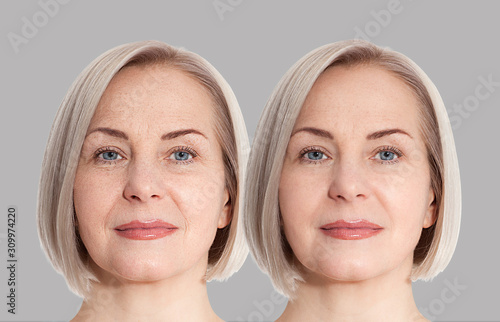 Woman middle age face before and after collagen face injection Canvas Print