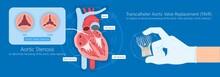 Transcatheter Aortic Valve Replacement (TAVR) Minimally Invasive Surgery