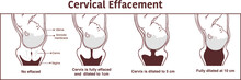 Vector - Cervical Effacement And Dilatation During Labor