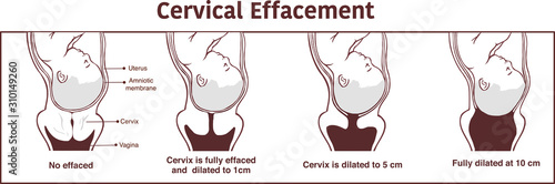 Vászonkép Vector - Cervical effacement and dilatation during labor