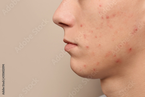 Photo Teen guy with acne problem on beige background, closeup