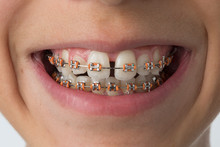 Close Up Of A Mouth With Dental Braces