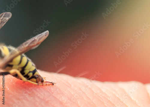 small striped dangerous insect wasp has stung a man in the skin and is trying to Poster Mural XXL