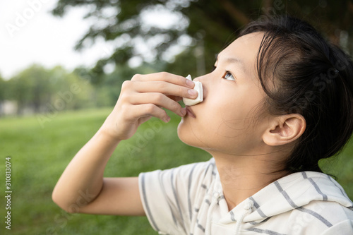 Photo Sick asian child girl using tissue paper for stop bleeding from the nose,female
