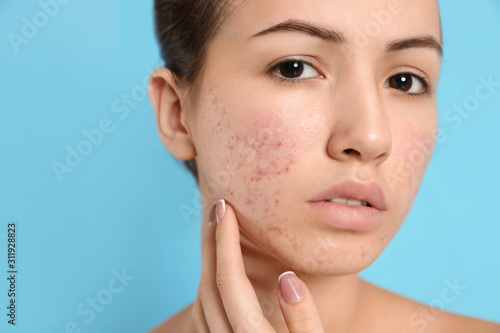 Photo Teen girl with acne problem on light blue background