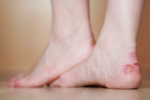 Woman's Feet With Blister Close Up. Injured Foot From High Heels.