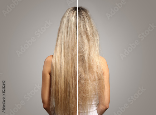 Cuadros en Lienzo Woman before and after hair treatment on grey background, back view