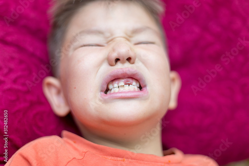 the boy laughs and shows the first tooth Canvas Print