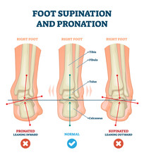 Foot Supination And Pronation Vector Illustration. Labeled Medical Scheme.