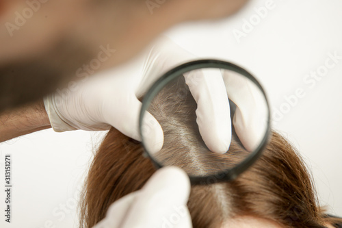 Doctor examining womans hair scalp, scalp eczema, dermatitis, psoriasis, hair loss, dandruff or dry scalp problem