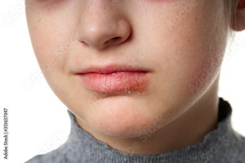 Allergic reaction, skin rash, close view portrait of a girl's face Wallpaper Mural