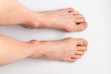 Bunions. Hallux Valgus, Feet I...