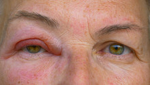CLOSE UP: Caucasian Lady With An Infected And Swollen Eye Looks Into The Camera.