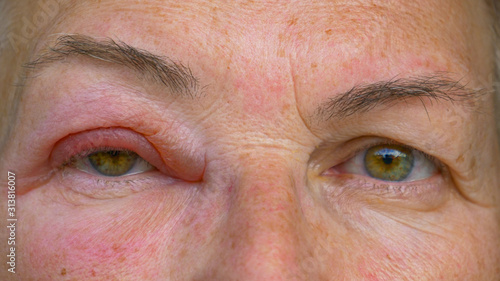 Canvas Print CLOSE UP: Caucasian lady with an infected and swollen eye looks into the camera