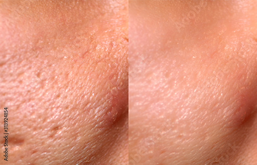 Photo Comparison of skin before and after laser resurfacing
