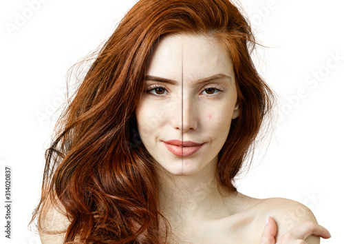 Redhead woman before and after acne treatment and makeup. Fototapete