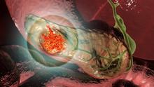 Pancreatic Cancer, Malignant Tumor Of Pancreas