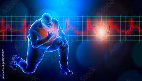 Obese of fat man kneeling while suffering from a heart attack 3d rendering illustration Canvas Print