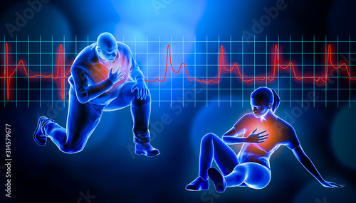 Obraz na plátne Obese of fat man kneeling while suffering from a heart attack 3d rendering illustration