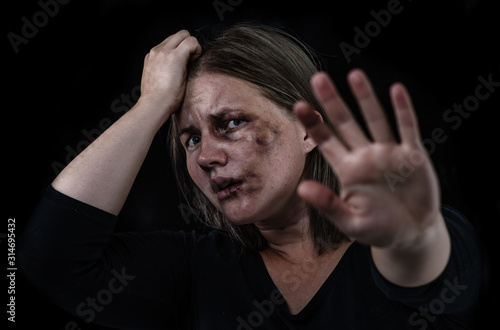 Crying woman victim of domestic violence and abuse showing a stop sign Canvas Print