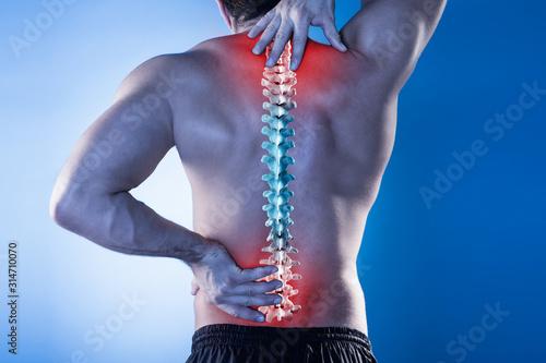 Fototapeta Man Suffering From Back Pain obraz