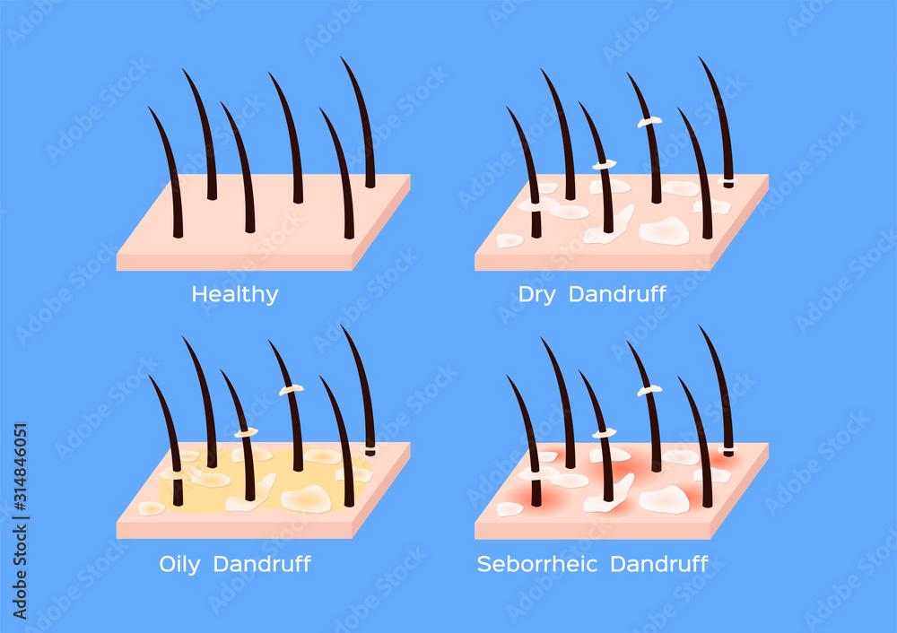 Fototapeta Dandruff on hair vector , closeup on skin vector , seborrhea