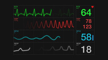 Closeup View Of An Ecg Ekg Display