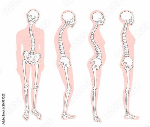 悪い姿勢のパターン 骨格とシルエット Fotobehang
