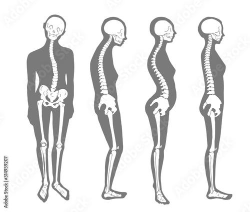 悪い姿勢のパターン 骨格とシルエット Canvas Print