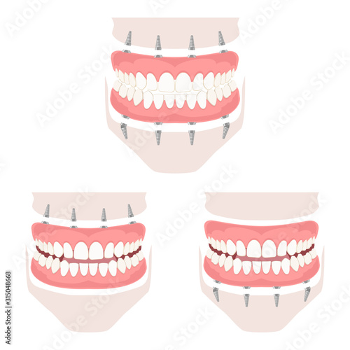 Removable denture of the upper and lower jaw. Wallpaper Mural