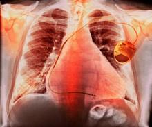 Pacemaker In Heart Disease, X-...