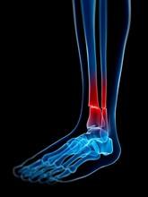 Broken Lower Leg Bones, Illust...